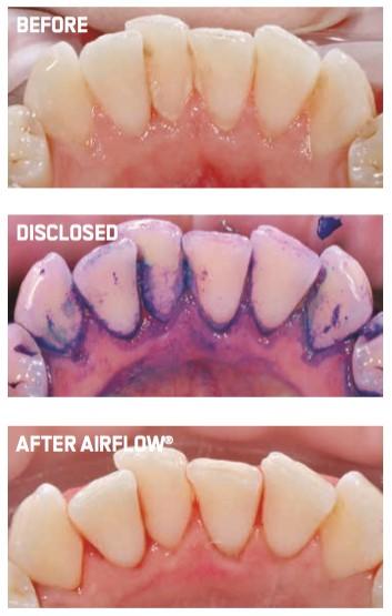 Air-Flow - Welshmill Dental Practice